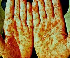 Contoh Cara Menyembuhkan Penyakit Sipilis